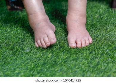 Elderly woman bare swollen feet on grass