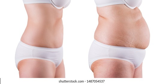 Elderly woman before and after weight loss, isolated on white background, plastic surgery concept