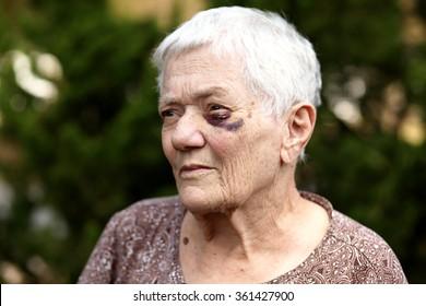 Elderly woman with bruised eye.