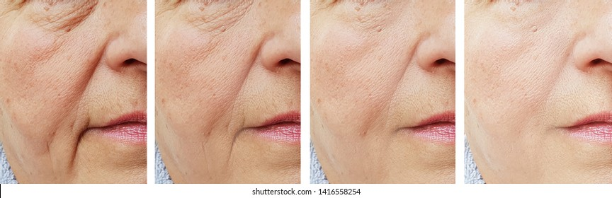 elderly woman face wrinkles   after treatment