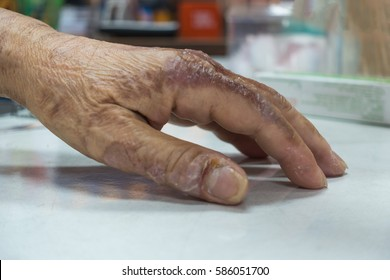 The elderly woman with hands blistered from the fire.