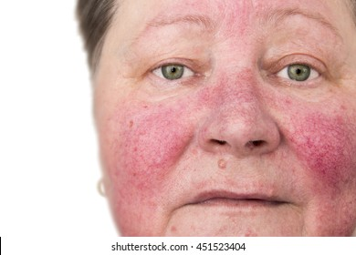 Elderly woman with rosacea, facial skin disorder, portrait