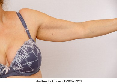 Elderly woman shows hands and armpits to demonstrate age-related changes. Concept for medicine and cosmetology