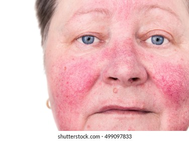 An elderly woman with skin rosacea condition characterized by facial redness, small and superficial dilated blood vessels, without make-up, colors manipulated
