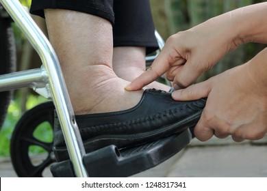 Ältere Frau mit geschwollenen Füßen Druckprüfung auf Rollstuhl