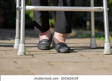 Elderly woman swollen feet use walker in backyard