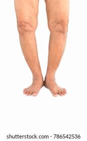 Elderly woman Varus deformity or bow legs.elderly health concept