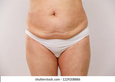 Elderly woman in white panties with a big fat belly. Concept for medicine and cosmetology