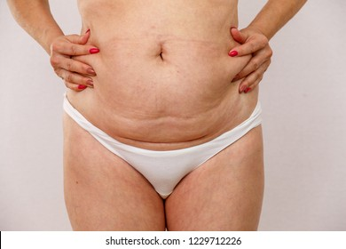 An elderly woman in white panties shows the folds on her stomach on a white isolated background. also visible scar from the operation. concept for medicine and cosmetology.
