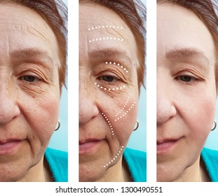 Elderly woman wrinkles before and after procedures