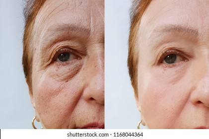 elderly woman wrinkles face before and after cosmetic procedures
