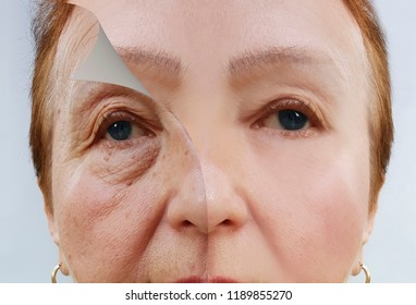 elderly woman wrinkles face before and after procedures