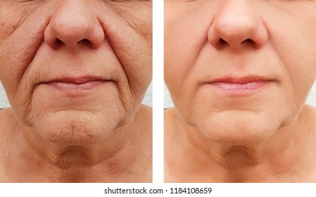 elderly woman wrinkles on face, before and after procedures