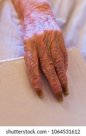 The elderly woman's hand, the nails which affected by the fungus
