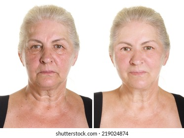 Elderly woman's portrait isolated on white. Before and after retouch.