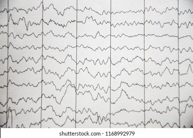 Electrical activity of the brain, EEG of pediatric patients with immaturity of the cerebral cortex
