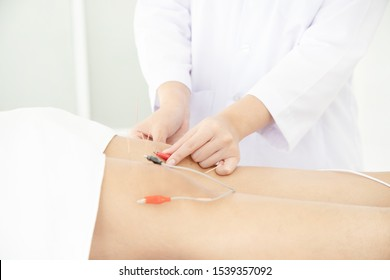 Electro Acupuncture.Traditional Chinese acupuncture and Electroacupuncture on leg of patient.