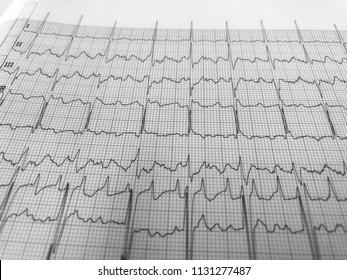 electrocadiogram and wave