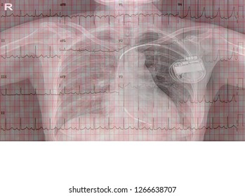 Electrocardigram of wave in paper report and chest x-ray with Automatic implantable cardioverter defibrillator(AICD)interaction in body chest.medical concept.