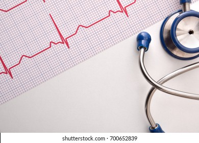 Electrocardiogram and blue stethoscope on white table close up. Top view. Horizontal composition.