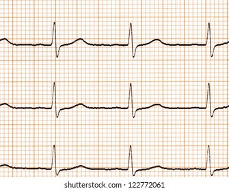 Electrocardiogram (ECG) on paper