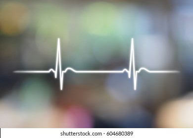 An electrocardiogram (EKG or ECG) is a test that checks for problems with the electrical activity of your heart.