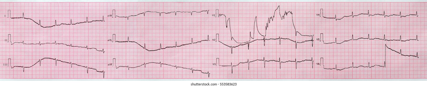 Electrocardiogram, the graph on the sheet of paper