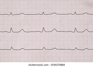 Electrocardiogram with normal frequency sinus rhythm