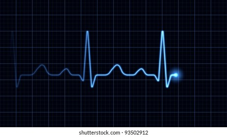 Electrocardiogram on a blue screen