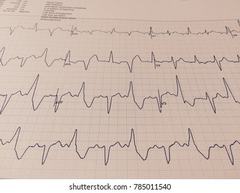 Electrocardiogram of wave in paper report analysis.