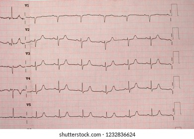 electrocardiograms, Heartbeat represented on graph paper.