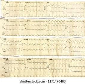 Electrocardiograph close up image as a background