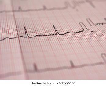Electrocardiography ECG aka EKG Elektrokardiogramm to measure heartbeat - selective focus