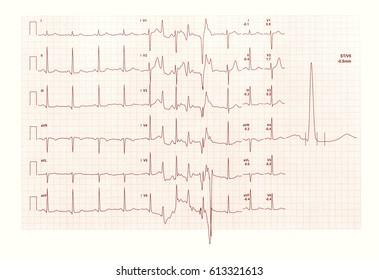 electrocardiography ECG aka EKG Elektrokardiogramm to measure heartbeat