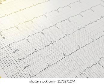 Electrocardiography, ECG , arrhythmia , cardiac disease, atrial fibrillation