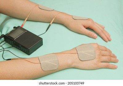 Electrodes  device on wrist and hand , transcutaneous interference electrical stimulation( TENS ) therapy for pain management.