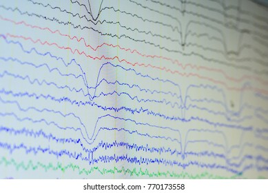 Electroencephalographic waves of patients brain,Samples of brain waves activity, recording EEG waves