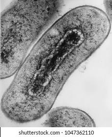 Electron micrograph cross section of Escherichia coli bacteria