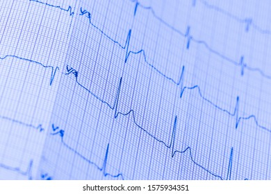Electronic cardiogram analysis recording sinus line