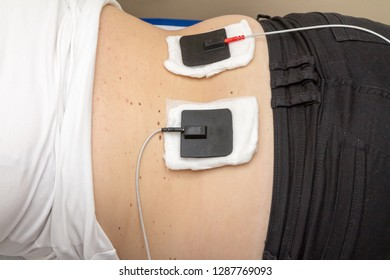 electrostimulation of the muscles of the spine