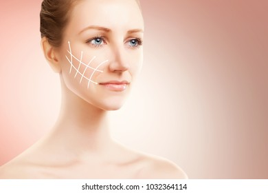 elegant blond woman portrait with surgery marks for lifting