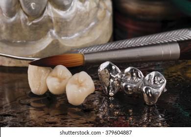 E-max pressed ceramic bridge and metal crown with dentistry utensils and mockup