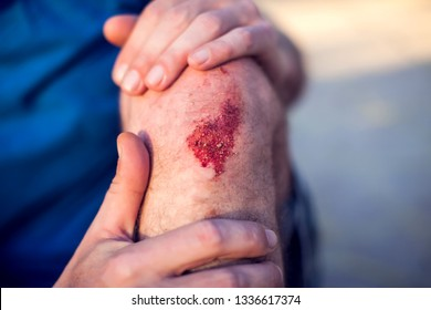 Emergency accident open abrasion wound trauma skin leg knee. People, healthcare and medicine concept