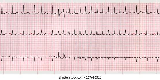 emergency-cardiology-ecg-supraventricular-arrhythmias-260nw-287698511.jpg