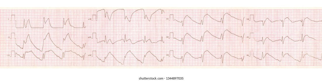 Emergency cardiology. ECG tape with changes in acute pericarditis