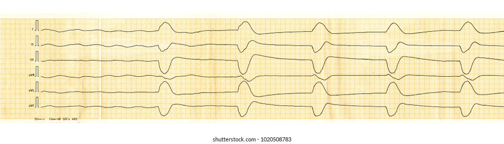 Emergency cardiology and resuscitation. ECG tape with slow idioventricular rhythm