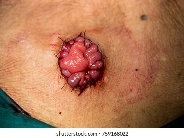 end sigmoid colostomy procedure in operation of rupture rectal carcinoma .
