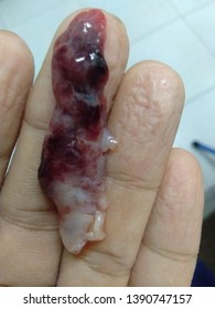 an endometrial cyst with bloods on sagging fingers