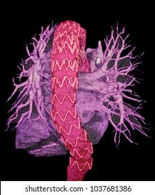 Endovascular aneurysm repair, CT image