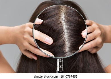 Enlarge a woman's scalp with a magnifying glass.